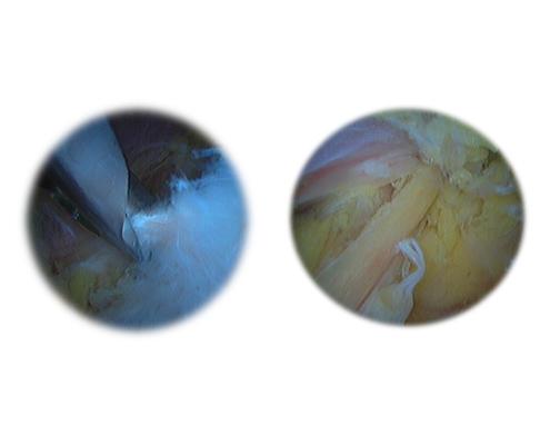 Liberación artroscópica del nervio supraespular
